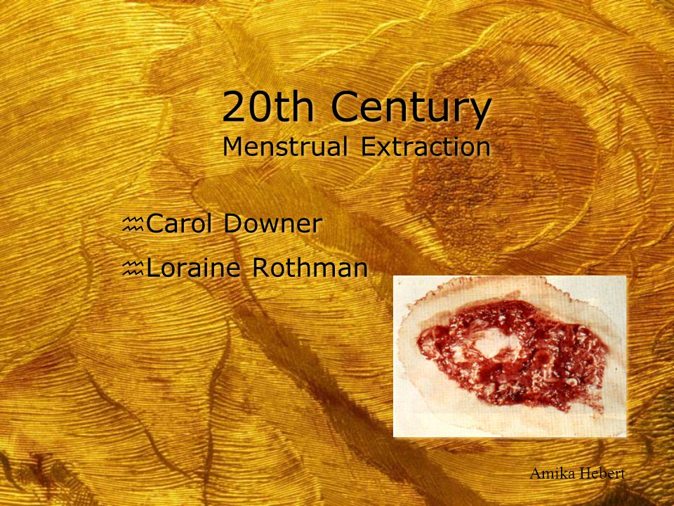 20th Century Menstrual Extraction