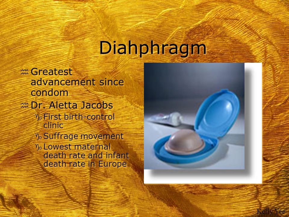 Diahphragm Greatest advancement since condom Dr. Aletta Jacobs