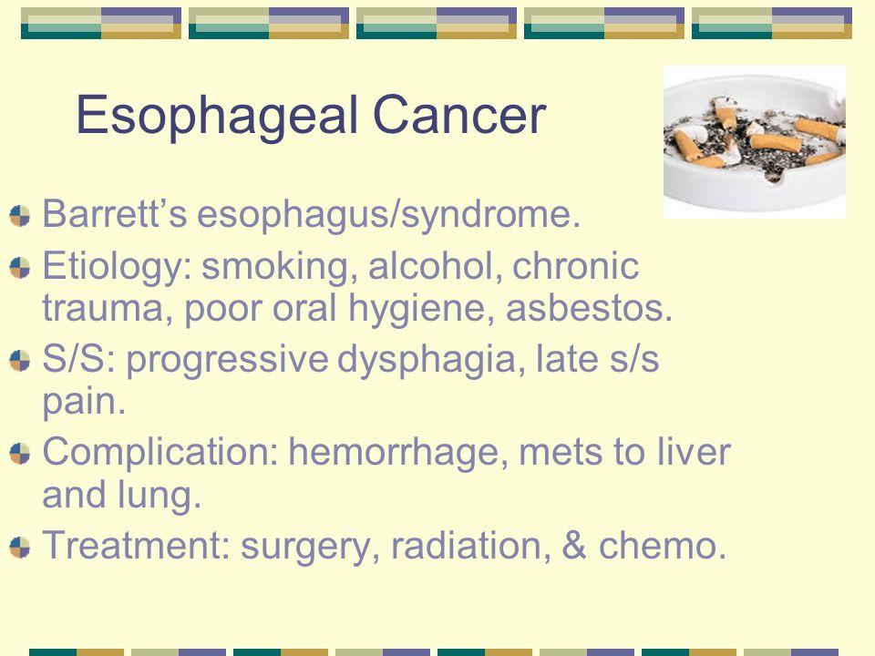 Esophageal Cancer Barrett's esophagus/syndrome.