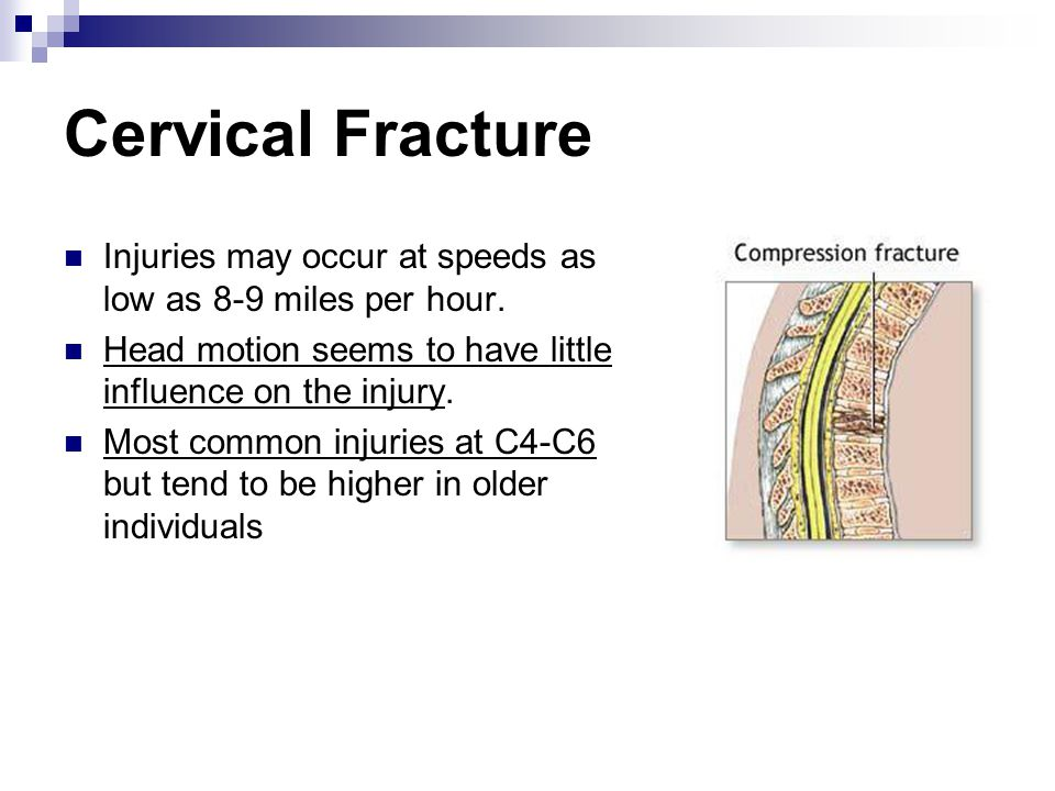 Cervical Fracture Injuries may occur at speeds as low as 8-9 miles per hour. Head motion seems to have little influence on the injury.