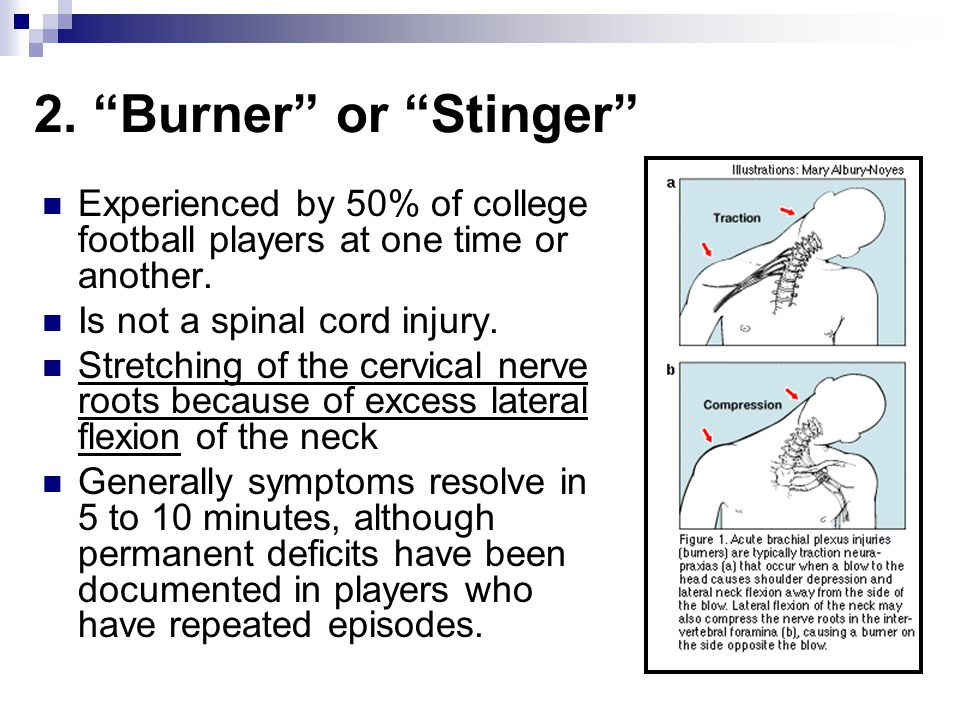 2. Burner or Stinger Experienced by 50% of college football players at one time or another. Is not a spinal cord injury.