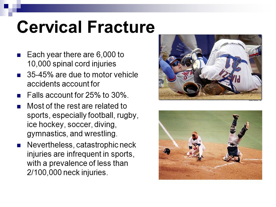 Cervical Fracture Each year there are 6,000 to 10,000 spinal cord injuries. 35-45% are due to motor vehicle accidents account for.