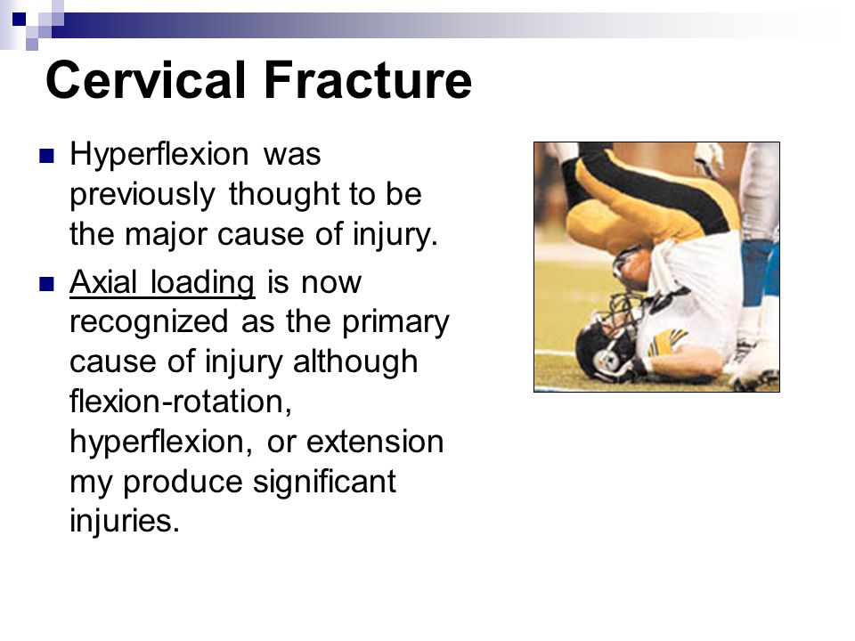 Cervical Fracture Hyperflexion was previously thought to be the major cause of injury.