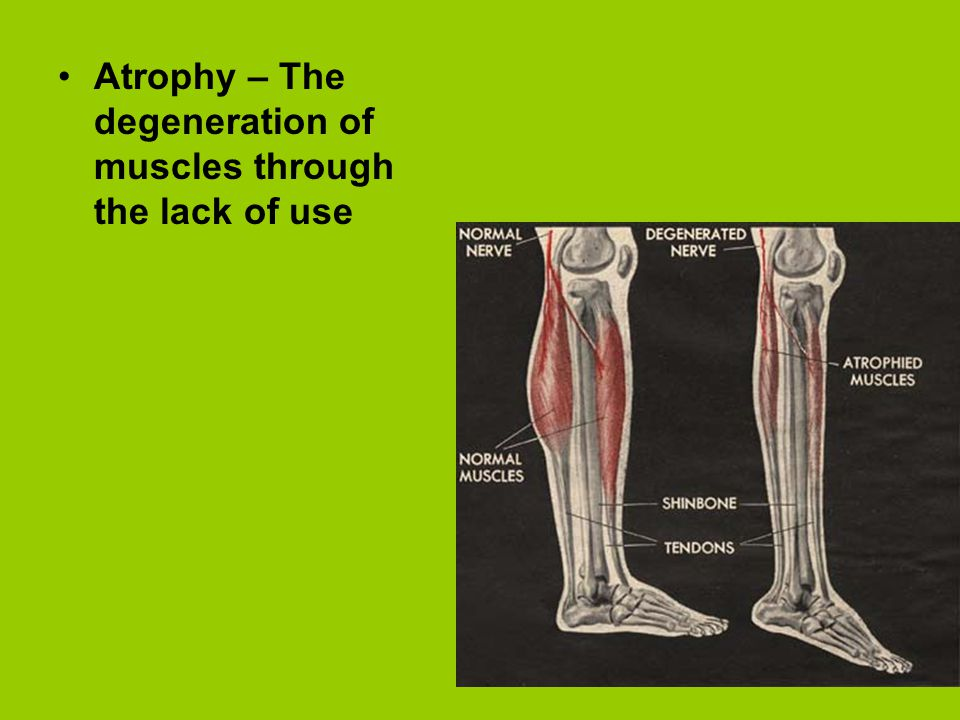 Atrophy – The degeneration of muscles through the lack of use