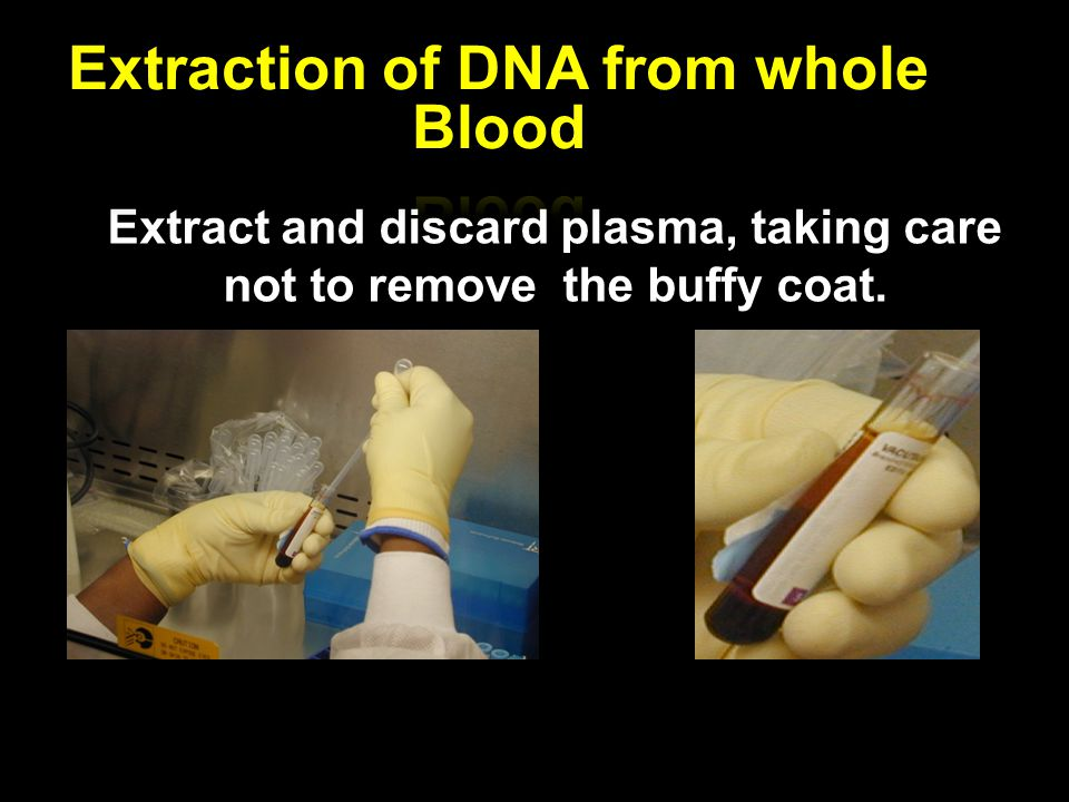 Extraction of DNA from whole Blood