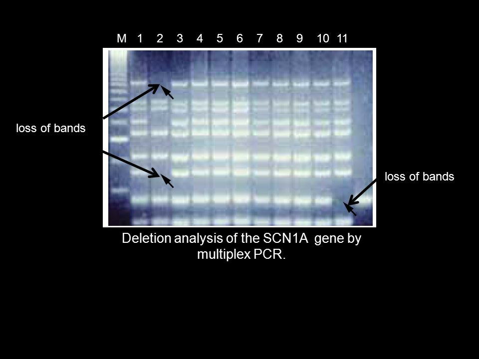 Deletion analysis of the SCN1A gene by multiplex PCR.