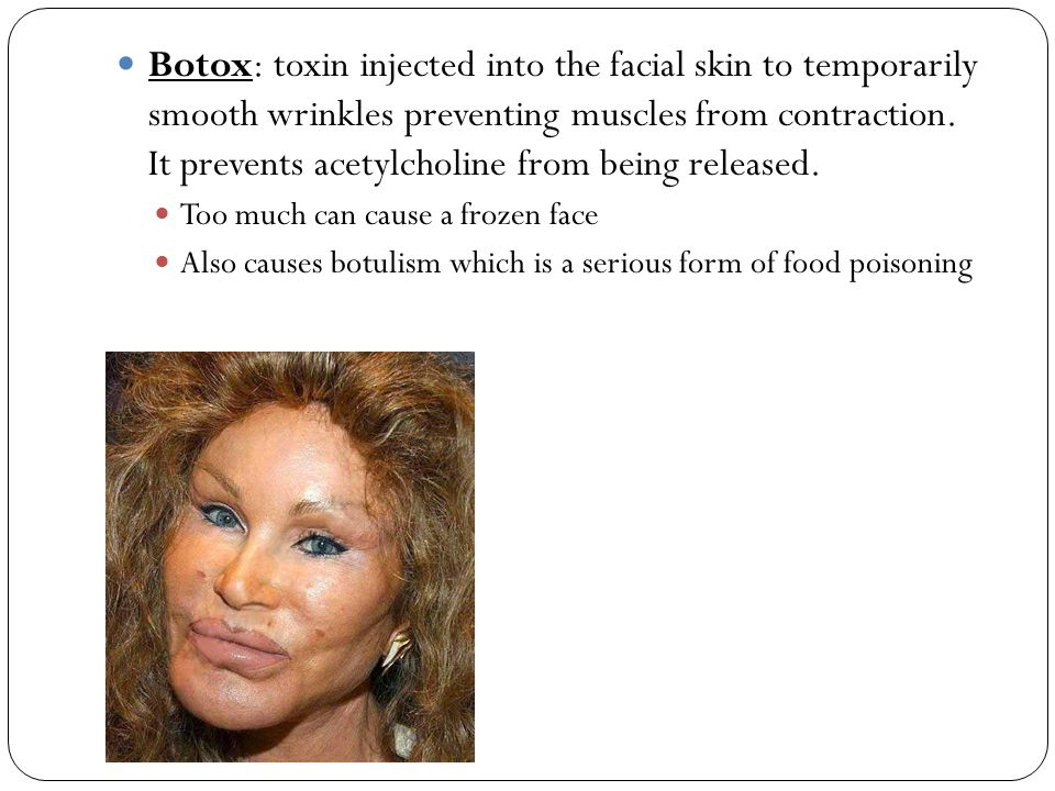 Botox: toxin injected into the facial skin to temporarily smooth wrinkles preventing muscles from contraction. It prevents acetylcholine from being released.