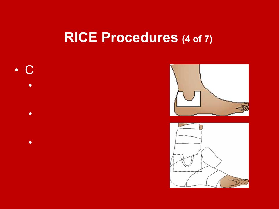 RICE Procedures (4 of 7) C