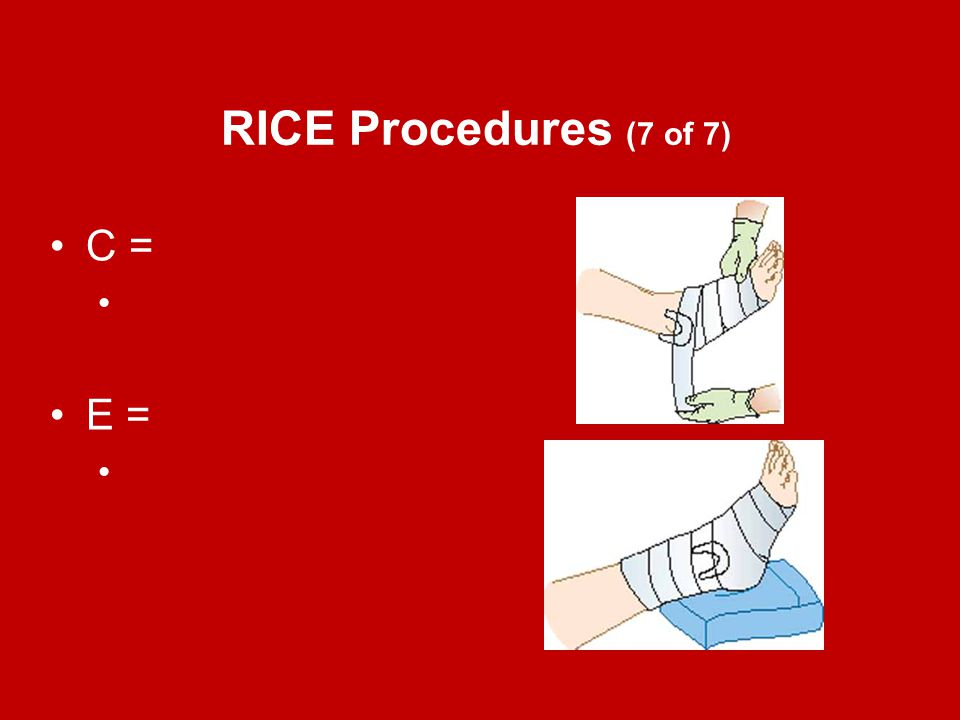 RICE Procedures (7 of 7) C = E =