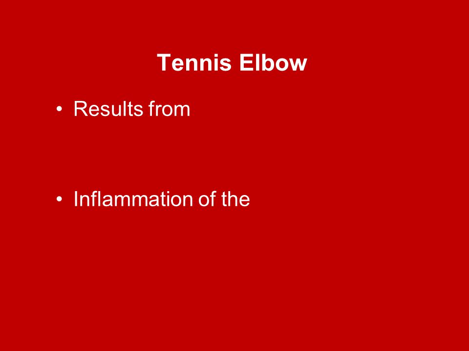 Tennis Elbow Results from Inflammation of the