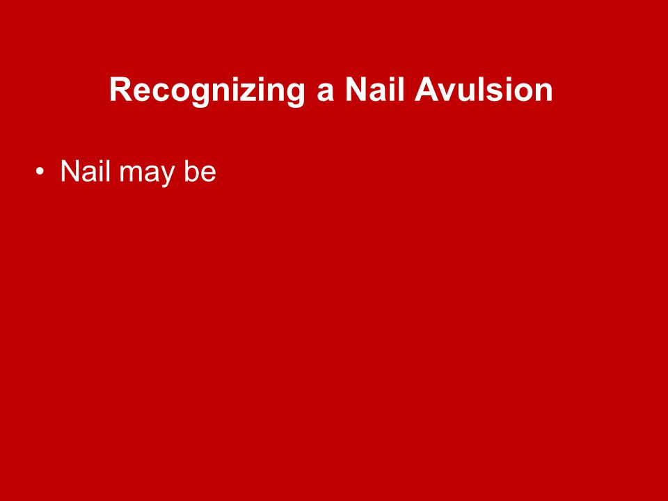 Recognizing a Nail Avulsion