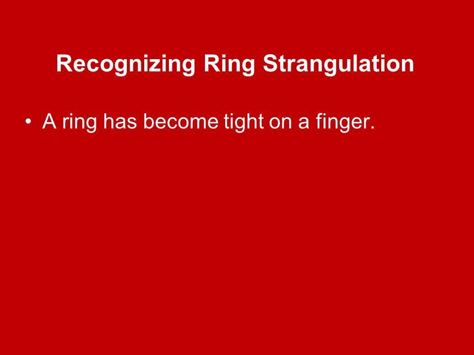 Recognizing Ring Strangulation