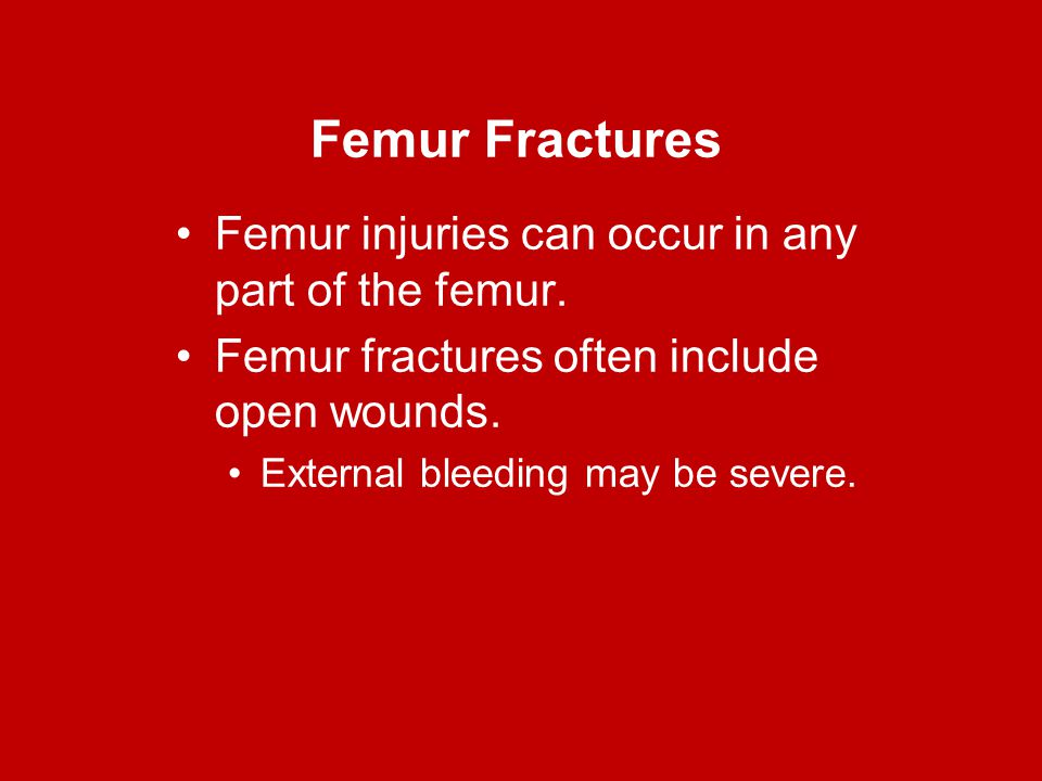 Femur Fractures Femur injuries can occur in any part of the femur.