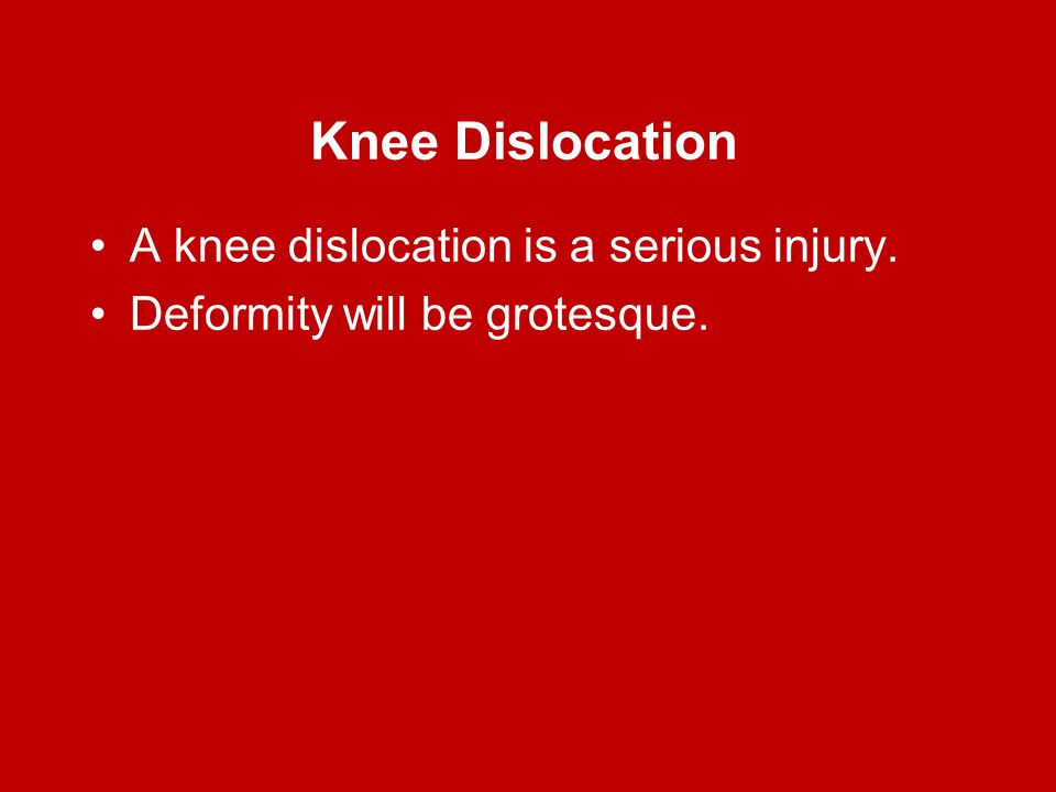 Knee Dislocation A knee dislocation is a serious injury.