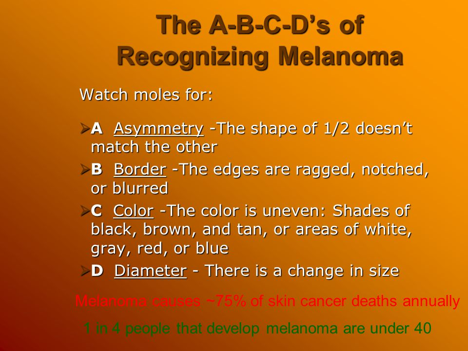 The A-B-C-D's of Recognizing Melanoma