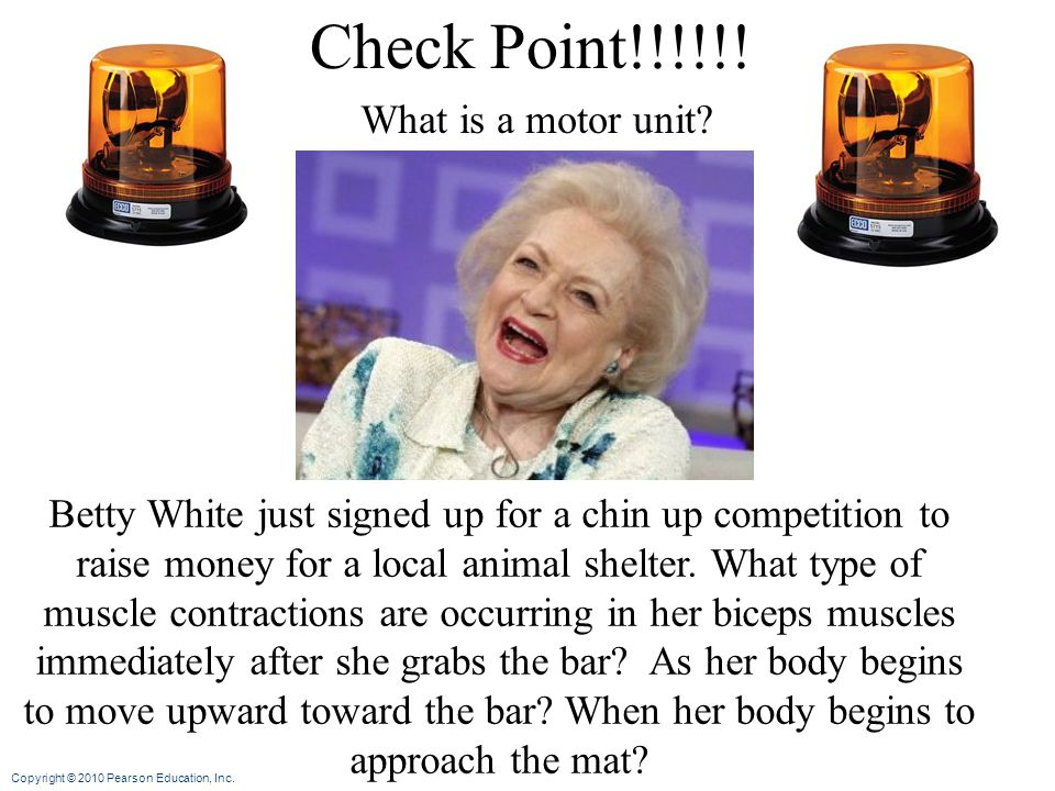 Check Point!!!!!! What is a motor unit