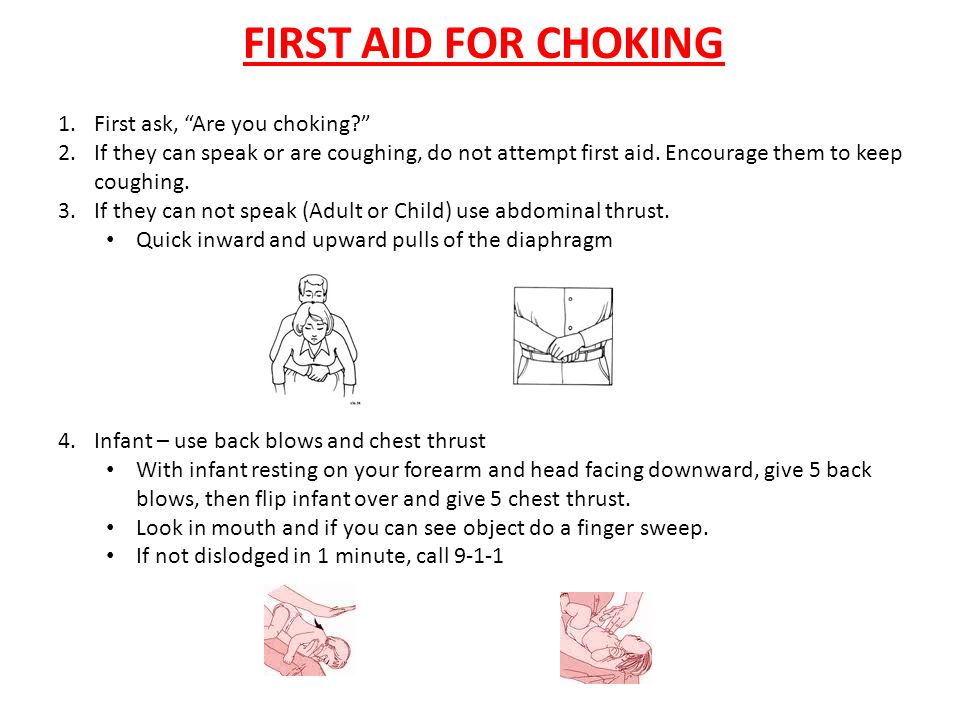FIRST AID FOR CHOKING First ask, Are you choking