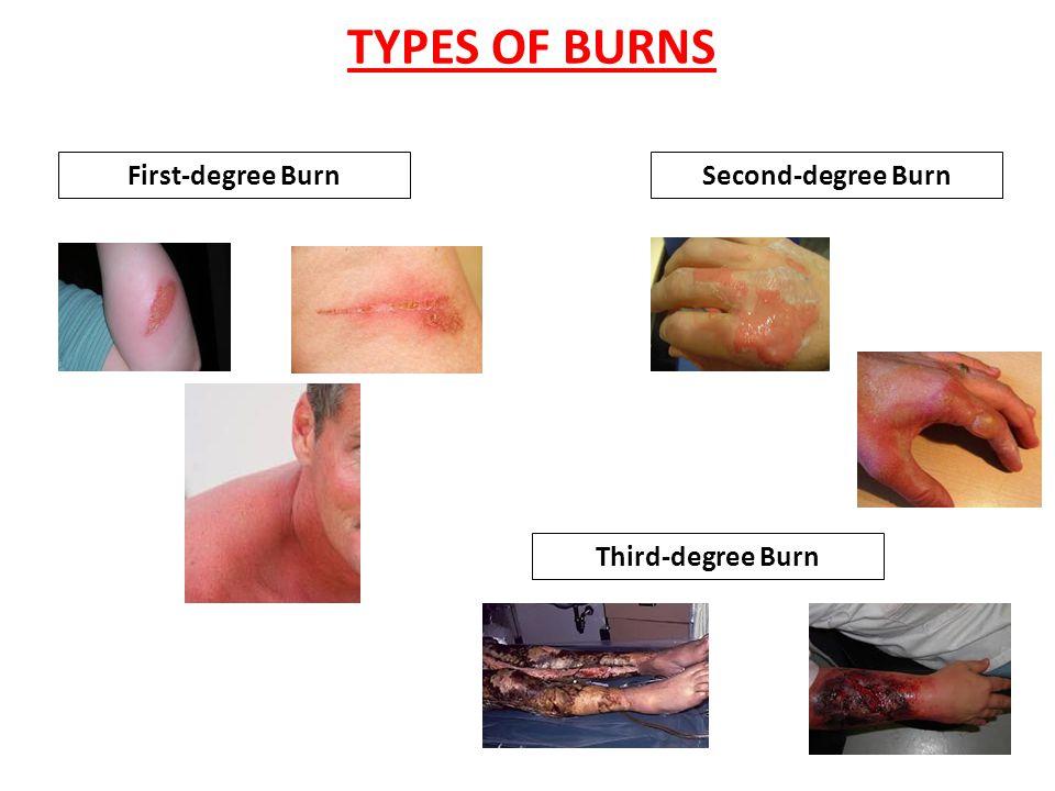 TYPES OF BURNS First-degree Burn Second-degree Burn Third-degree Burn