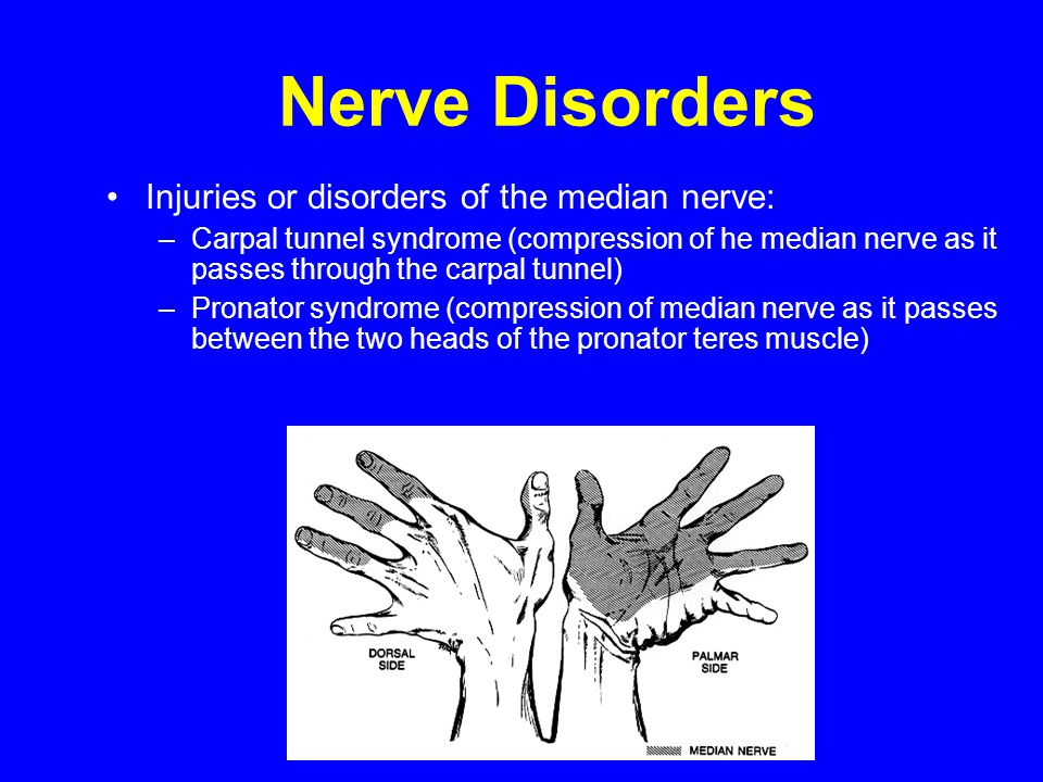 Nerve Disorders Injuries or disorders of the median nerve: