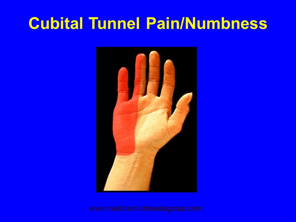 Cubital Tunnel Pain/Numbness