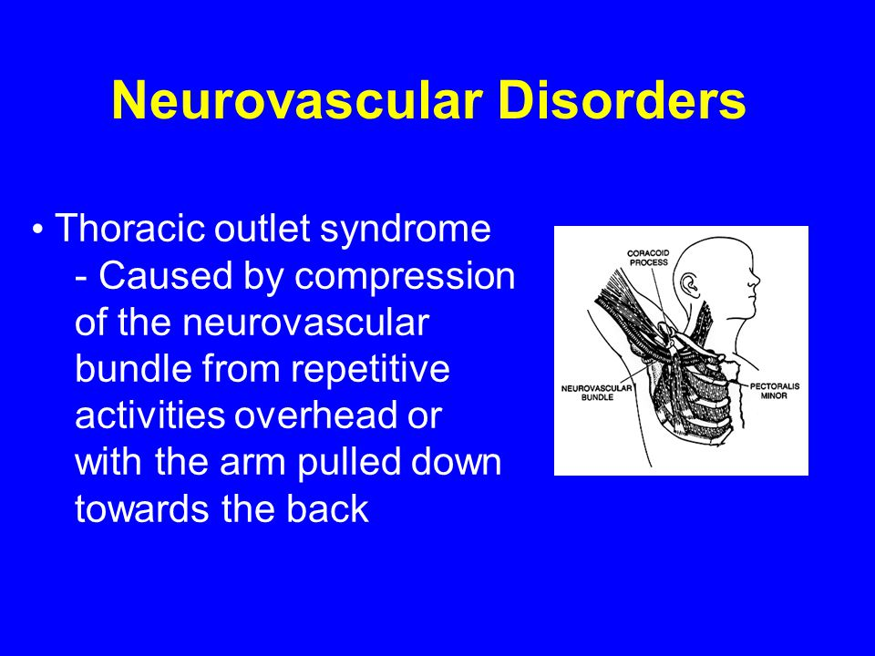 Neurovascular Disorders