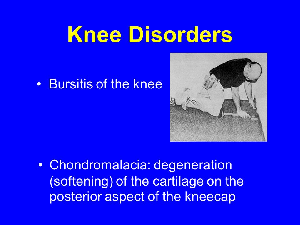Knee Disorders Bursitis of the knee