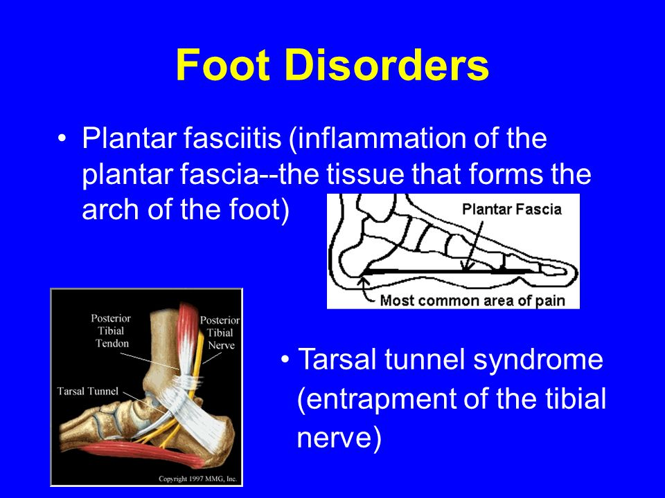 Foot Disorders Plantar fasciitis (inflammation of the plantar fascia--the tissue that forms the arch of the foot)