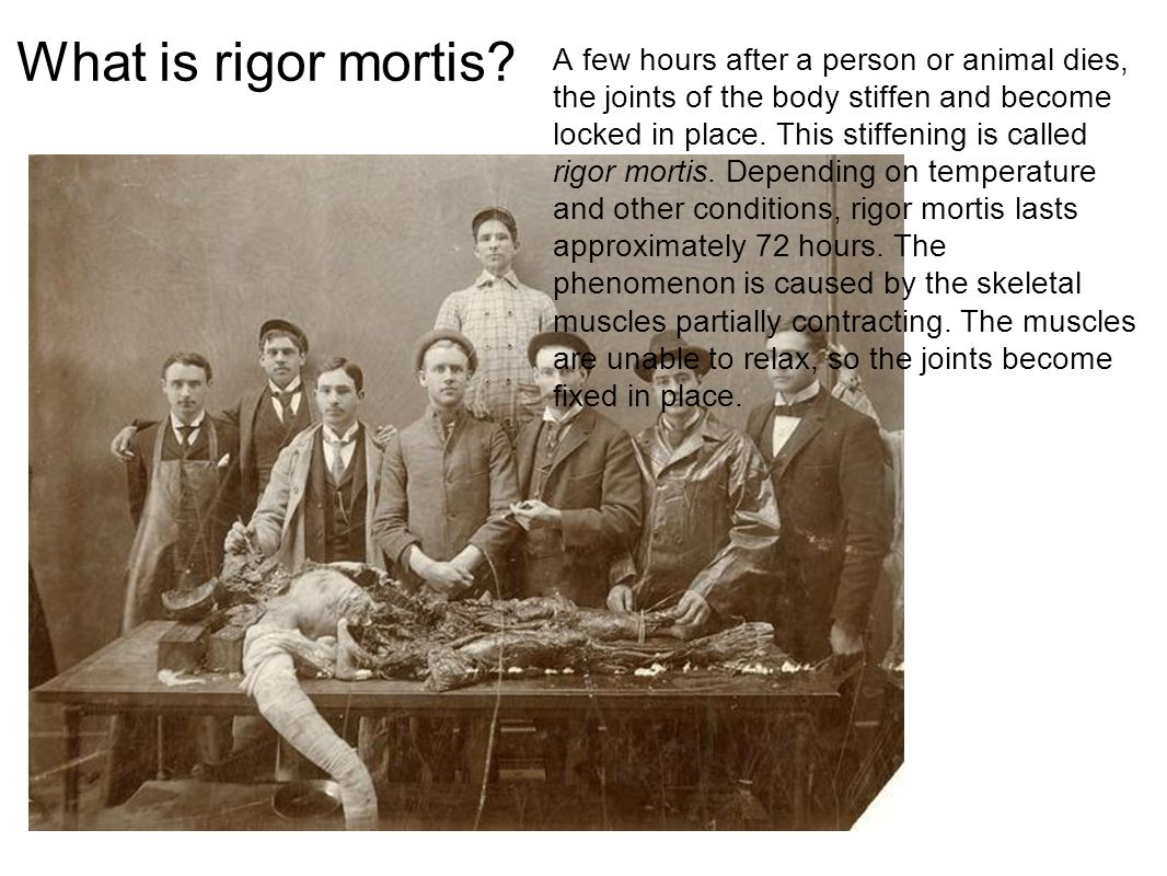What is rigor mortis