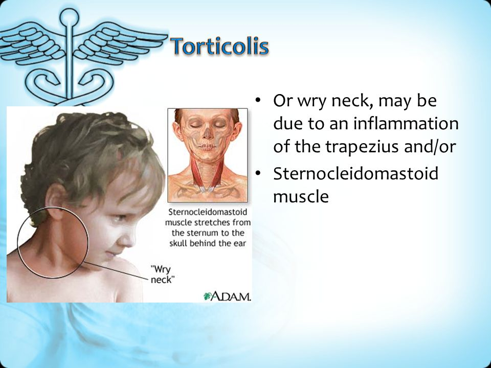 Torticolis Or wry neck, may be due to an inflammation of the trapezius and/or.