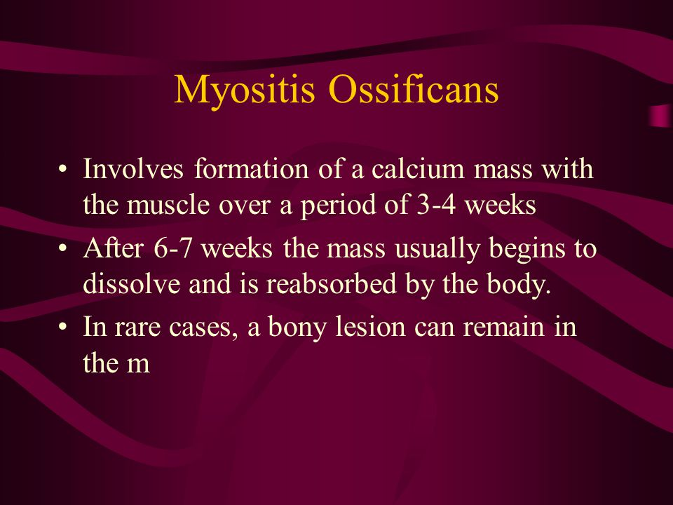 Myositis Ossificans Involves formation of a calcium mass with the muscle over a period of 3-4 weeks.