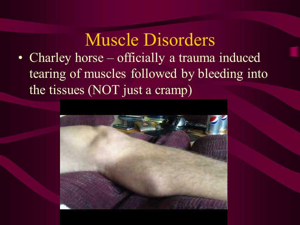 Muscle Disorders Charley horse – officially a trauma induced tearing of muscles followed by bleeding into the tissues (NOT just a cramp)