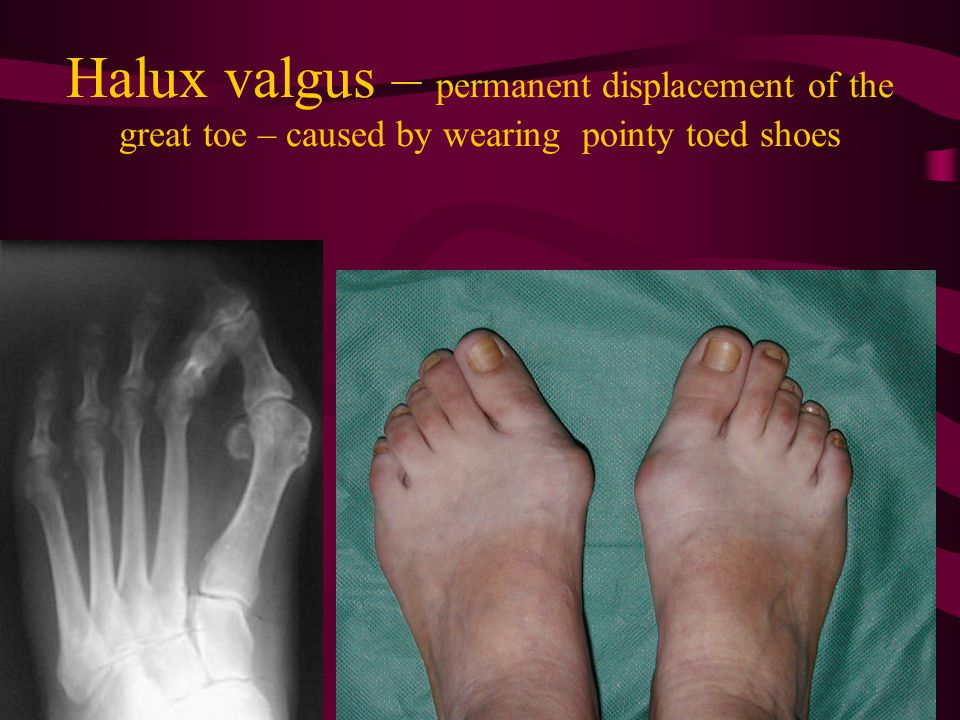 Halux valgus – permanent displacement of the great toe – caused by wearing pointy toed shoes
