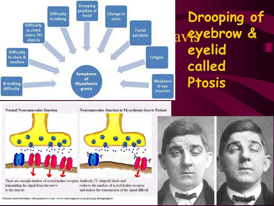 Drooping of eyebrow & eyelid called Ptosis