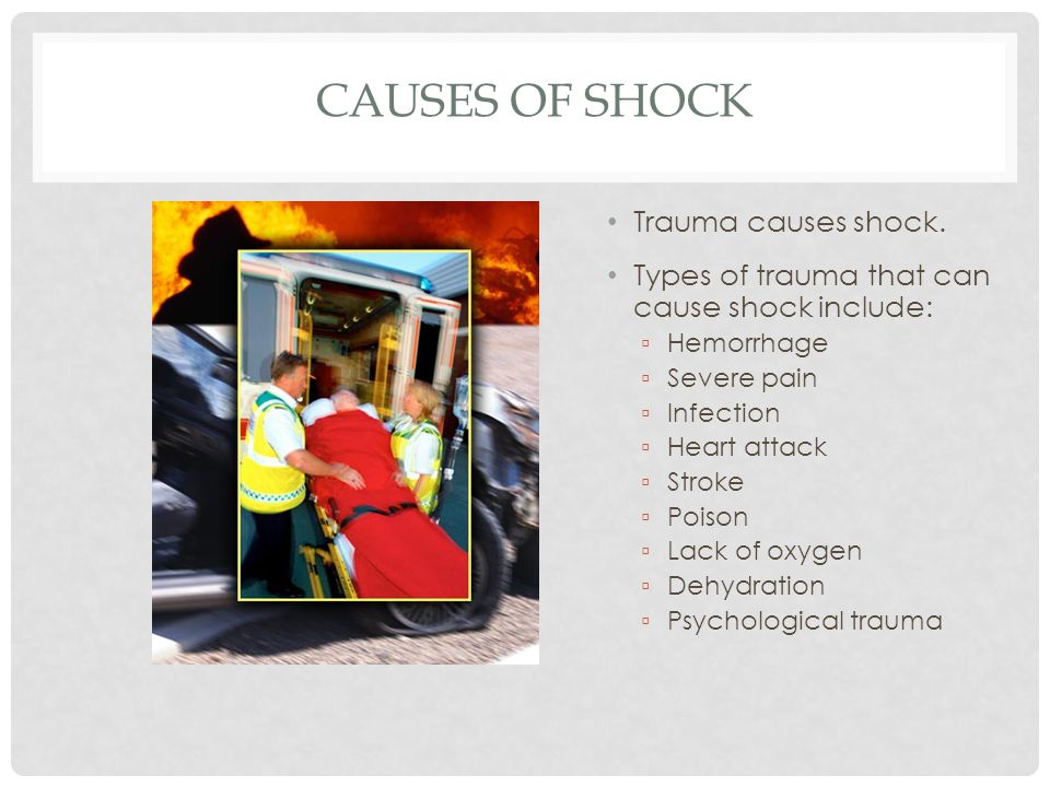 Causes of Shock Trauma causes shock.