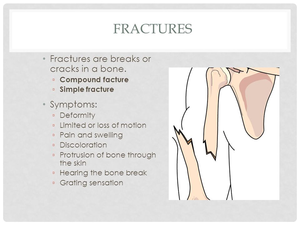 Fractures Fractures are breaks or cracks in a bone. Symptoms: