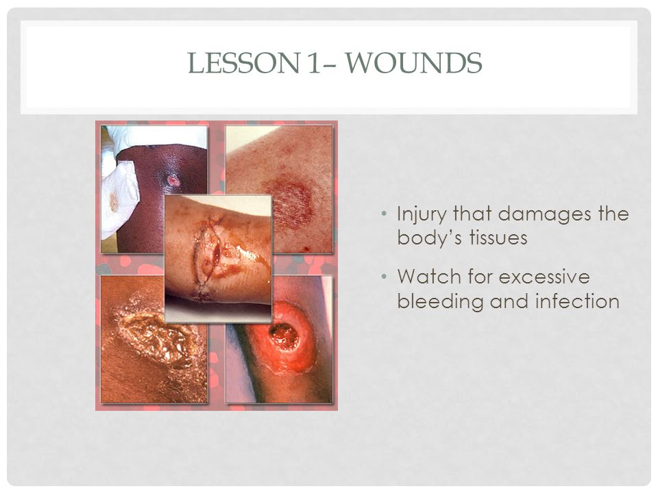 Lesson 1– Wounds Injury that damages the body's tissues