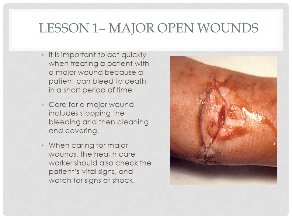 Lesson 1– Major Open Wounds