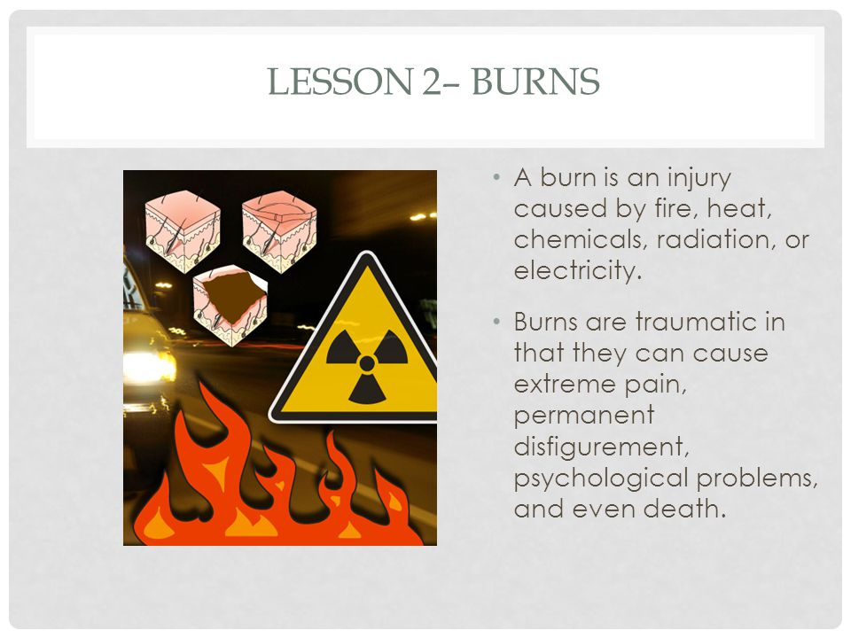 Lesson 2– Burns A burn is an injury caused by fire, heat, chemicals, radiation, or electricity.
