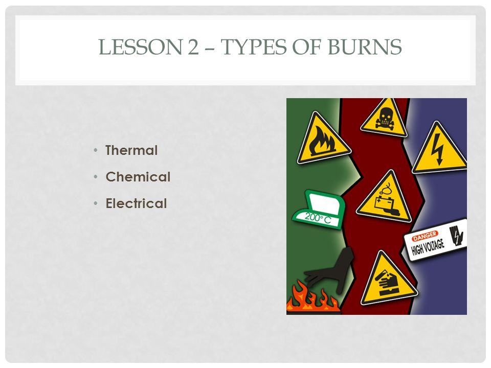 Lesson 2 – Types of Burns Thermal Chemical Electrical Types of Burns