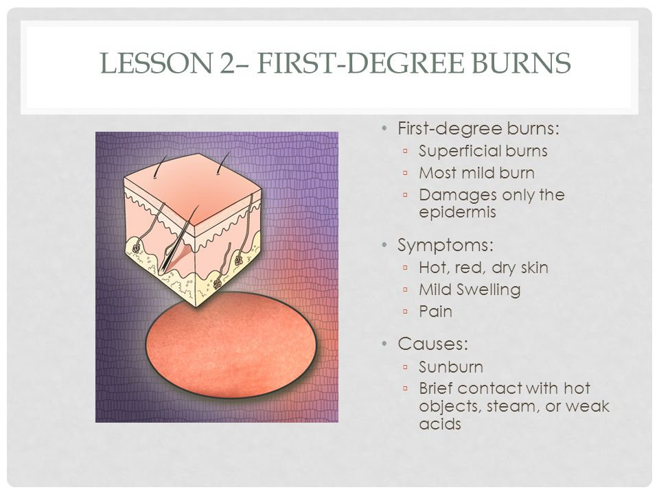 Lesson 2– First-Degree Burns