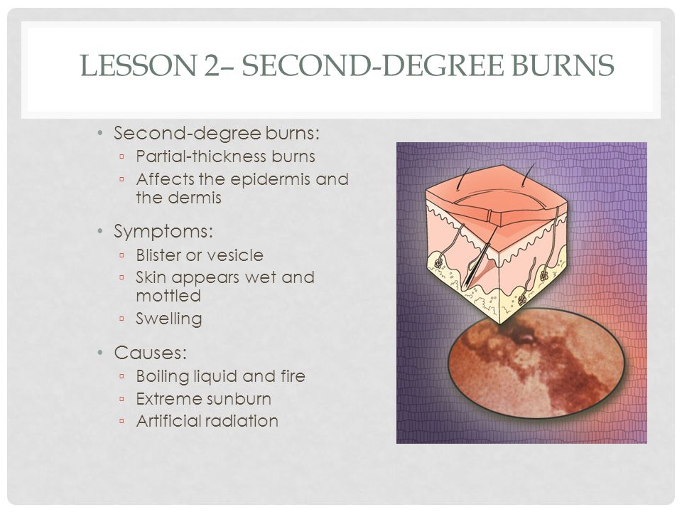 Lesson 2– Second-Degree Burns