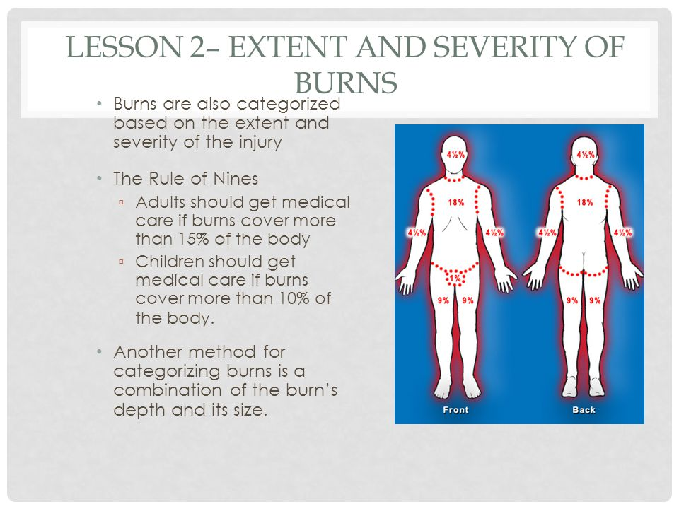 Lesson 2– Extent and Severity of Burns
