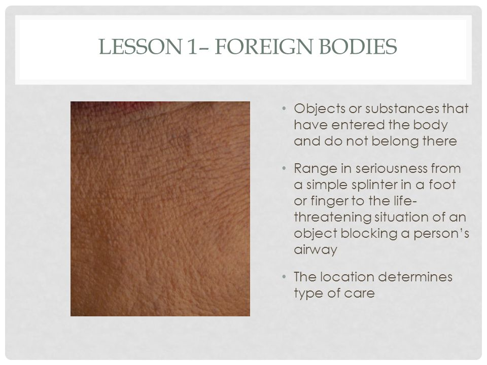 Lesson 1– Foreign Bodies