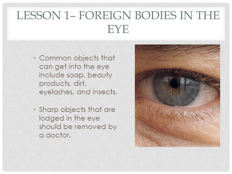 Lesson 1– Foreign Bodies in the Eye