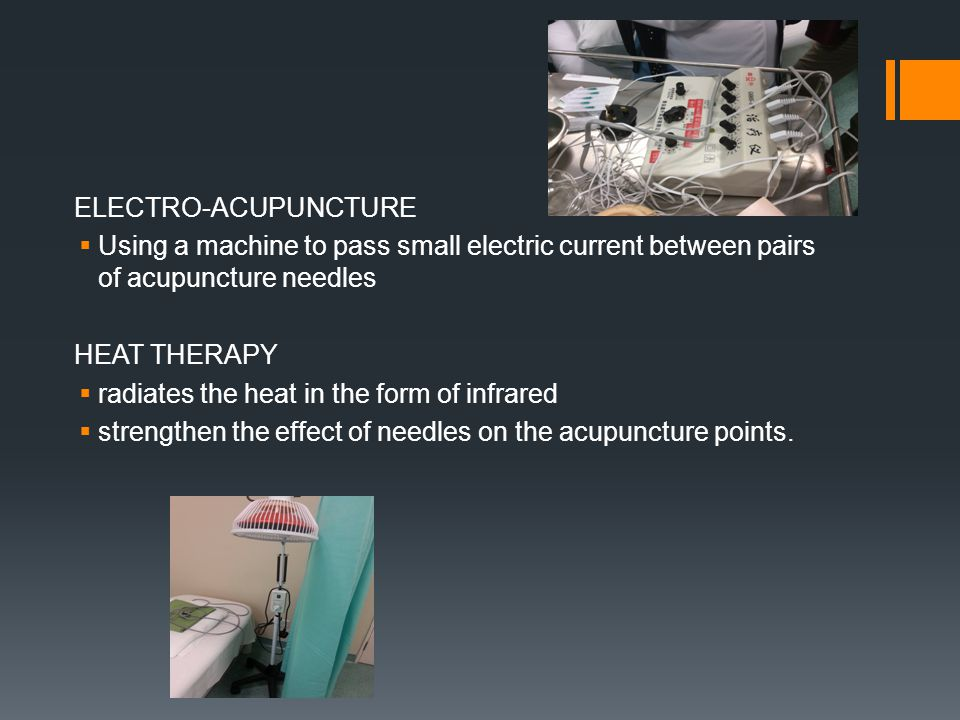 ELECTRO-ACUPUNCTURE Using a machine to pass small electric current between pairs of acupuncture needles.