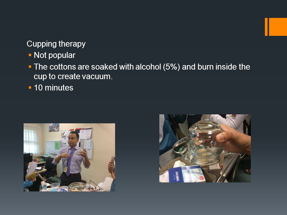 Cupping therapy Not popular. The cottons are soaked with alcohol (5%) and burn inside the cup to create vacuum.