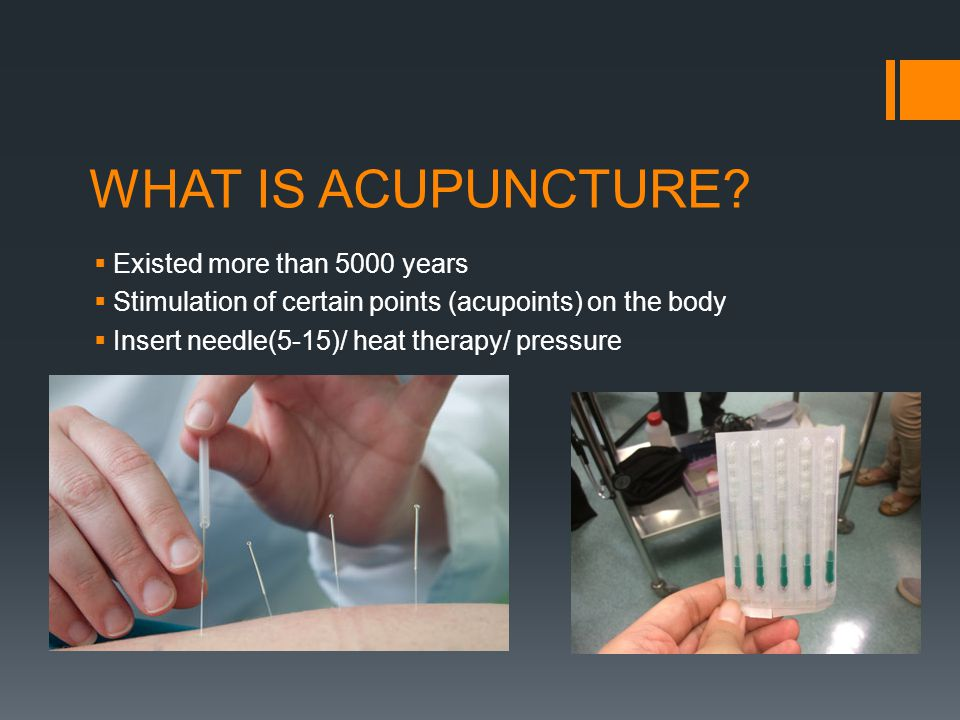 WHAT IS ACUPUNCTURE Existed more than 5000 years