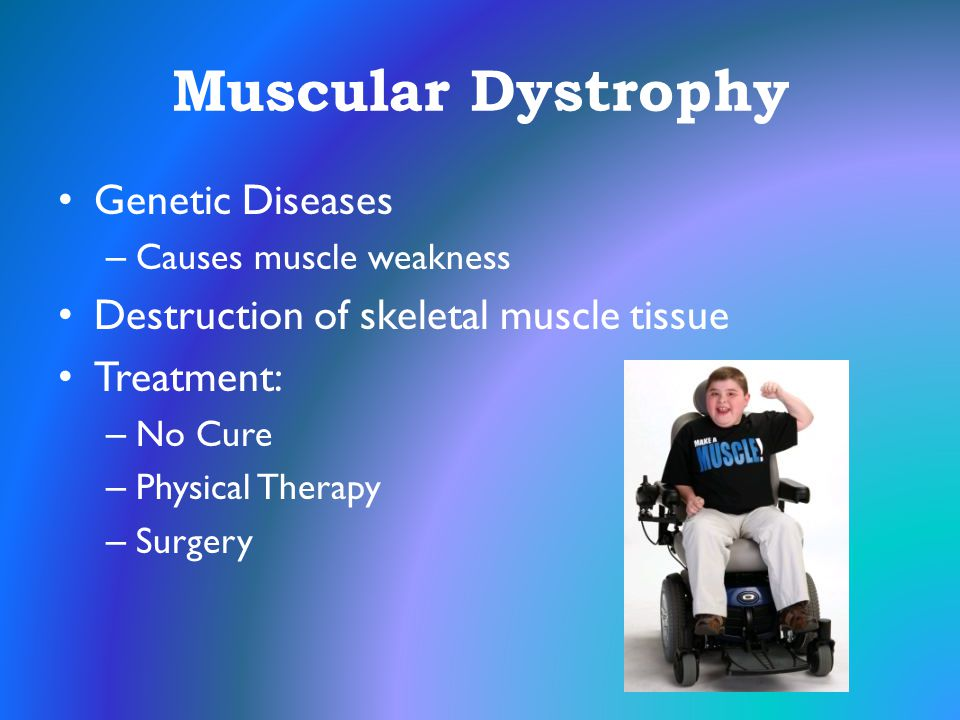 Muscular Dystrophy Genetic Diseases