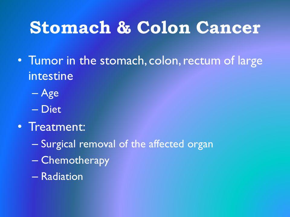 Stomach & Colon Cancer Tumor in the stomach, colon, rectum of large intestine. Age. Diet. Treatment: