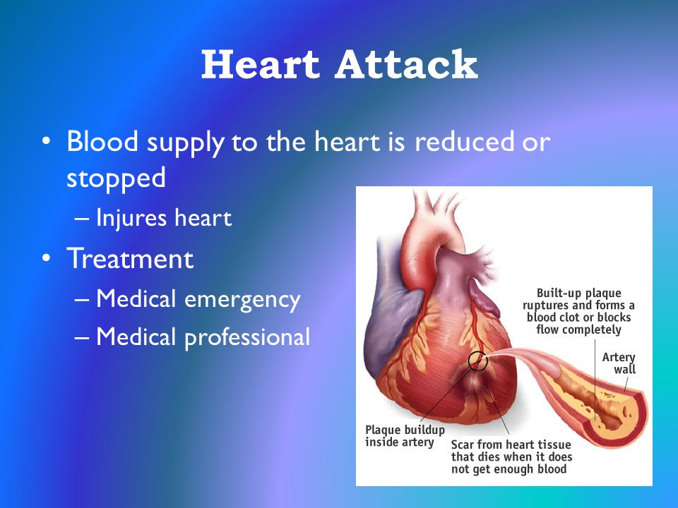 Heart Attack Blood supply to the heart is reduced or stopped Treatment
